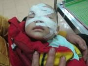 Tin tức - Xót thương cảnh bé 6 tháng tuổi bị chém trọng thương mất mẹ