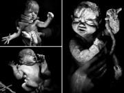 """Bà bầu - Loạt ảnh 20 giây đầu đời của bé sinh mổ gây """"sốc"""""""