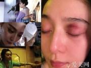 Làng sao - Mỹ nhân Cbiz đau đớn gặp chấn thương trên phim trường
