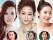 Ngắm mỹ nhân Hàn trước và sau khi phẫu thuật thẩm mỹ