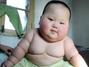 Làm mẹ - Trẻ dễ béo phì nếu dùng nhiều kháng sinh