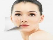 Làm đẹp - 7 phương pháp  ngăn ngừa mụn hiệu quả