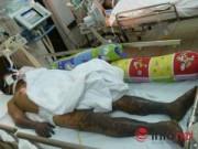 Tin tức - Bệnh liên cầu lợn gia tăng dịp Tết: Nguy hiểm khi ăn tiết canh