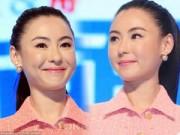 Làng sao - Trương Bá Chi lộ mặt căng phồng vì botox
