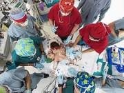 Làm mẹ - Ảnh tuyệt đẹp về ca phẫu thuật tách hai bé dính liền bụng