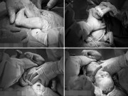 Bà bầu - Kinh ngạc với ca sinh mổ chân thai nhi ra trước