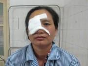 Tin tức - Người phụ nữ bị mù vì chun bắn vào mắt