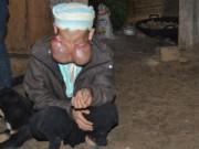 Tin tức - Người đàn bà mang 'gương mặt quỷ' ở Bản Pát