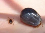 """Sức khỏe - Cẩn thận loài bọ chét """"đào hang"""" trên da người"""