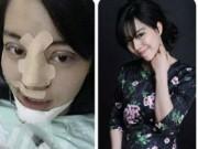Eva tám - 9X phẫu thuật thẩm mỹ toàn mặt vì sợ chồng 'chán'