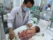 Nuôi con - Xúc động chuyện cứu sống bé mang u quái của bác sỹ Việt