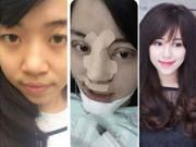 Làm đẹp - Gặp cô gái phẫu thuật toàn mặt vì sợ chồng chán