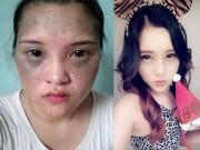 Làm đẹp - So độ 'lột xác' của 10 thiếu nữ Việt sau dao kéo