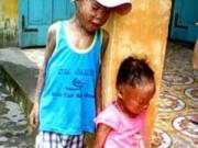 Tin tức - Hai bé sinh đôi đau đớn bị da vảy cá, sống mồ côi