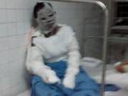 Tin trong nước - Xót xa người vợ tự thiêu vì bị chồng bạo hành hơn 5 năm