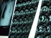 Tin tức - Cứu sống nam bệnh nhân bị phình to động mạch chủ