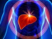 Sức khỏe - Viêm gan siêu vi B: đừng để quá muộn