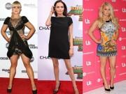 10 ngôi sao có đôi chân xấu vẫn tự tin diện váy ngắn