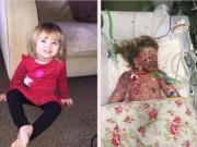 Làm mẹ - Bé 2 tuổi qua đời và lời cảnh tỉnh về việc tiêm vắc-xin