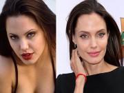 Làm đẹp - Những ngôi sao phẫu thuật thẩm mỹ nổi tiếng nhất