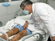 Tin tức - Xuất hiện ca nhiễm não mô cầu đầu tiên ở Hà Nội