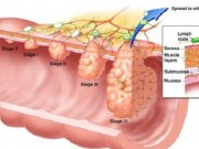 Ung thư đại trực tràng giai đoạn cuối vẫn có thể điều trị được?
