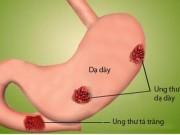 Tin tức - Những dấu hiệu ung thư đại trực tràng ai cũng bỏ qua