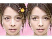 Làm đẹp mỗi ngày - Đánh tan bọng mỡ mắt trong 60 phút không phẫu thuật