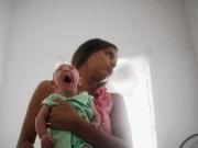 Tin tức - Bộ Y tế ra khuyến cáo chi tiết phòng chống bệnh do virus Zika