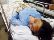 Tin tức - Nữ sinh bị tạt axit giữa đường có thể hỏng mắt,  bỏng mặt 75%