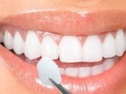 Làm đẹp mỗi ngày - Tin vui cho người muốn bọc răng sứ không mài răng
