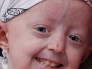 Tin tức - Cô bé mắc chứng 'lão hóa sớm' qua đời ở tuổi 17