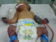 Tin tức - Cứu sống ngoạn mục bé sơ sinh bị hoại tử cả tay lẫn chân