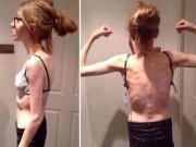 Làm đẹp - 'Nghiện' ăn kiêng, cô gái 15 tuổi chỉ còn da bọc xương
