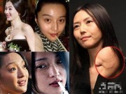 Làm đẹp - Mỹ nhân Hoa ngữ lộ khuyết điểm 'chết người'