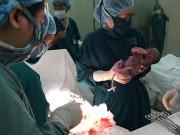 Tin tức - Phẫu thuật cứu sống trẻ ngay trong phòng sinh