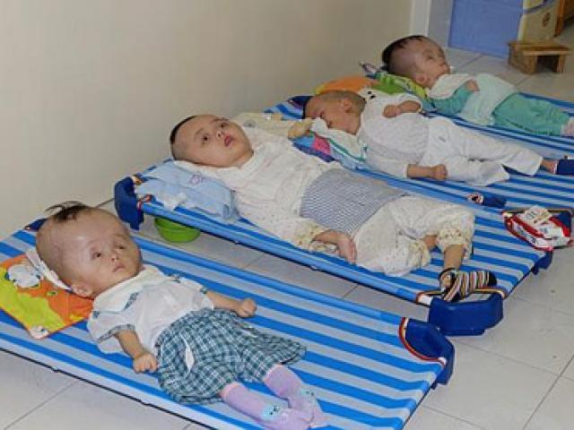 Báo Úc xót xa trẻ em nhiễm chất độc da cam Việt Nam