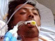 Sức khỏe - Một người đàn ông tử vong sau khi nâng ngực bằng dầu ăn