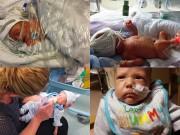 Làm mẹ - Bộ ảnh 100 ngày chuyển biến kỳ diệu của em bé sinh non 4 tháng