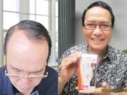 Làm đẹp mỗi ngày - Trị rụng tóc đơn giản, hiệu quả với Dầu dưỡng tóc Thy Nga