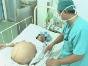 Tin tức - Phẫu thuật khối u 'khổng lồ' chứa hơn 12 lít dịch