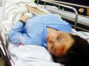 Vụ nữ sinh Sài Gòn bị tạt axít mù mắt:
