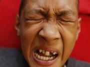 Làm mẹ - Rùng mình lễ cắt bao quy đầu cho 300 cậu bé tại Philippines