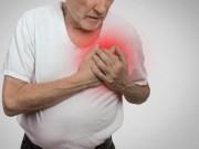 Sức khỏe - Vitamin D liên quan sức khỏe tim mạch