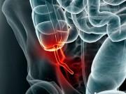 Tin tức - Bất ngờ phát hiện bao cao su mắc trong… ruột thừa
