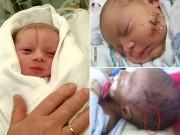 Bà bầu - Xót xa những em bé sơ sinh bị bác sĩ mổ đẻ trúng người