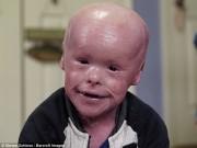 Làm mẹ - Xót xa cậu bé mắc phải căn bệnh lạ về da