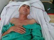 Diễn viên Nguyễn Hoàng dần hồi phục sau ca ghép hộp sọ