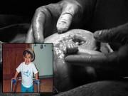Bà bầu - Gặp lại thai nhi trong bức ảnh nắm ngón tay bác sỹ chấn động thế giới