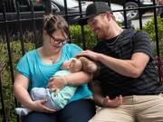 Tin tức - Mỹ: Sức sống kỳ diệu của em bé hở sọ não bẩm sinh